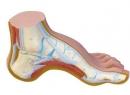 Что такое полая стопа? Лечение полой стопы: стельки, упражнения