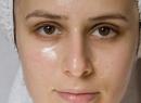 Способы лечения атрофии кожи