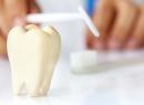 Что такое гранулема зуба, лечение - лечение, гранулема зуба, лечение