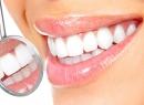 Что такое профессиональная гигиена полости рта и как она проводится - гигиена и эстетика, удаление зубного камня, полость рта, профессиональная гигиена