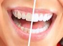 Действенные методы отбеливания зубов в домашних условиях - гигиена и эстетика, отбеливание зубов, домашние условия, методы