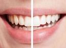 Для чего нужно отбеливать зубы? - гигиена и эстетика, белоснежная улыбка, отбеливание зубов, комплексы