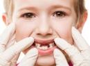 """Гингивит у детей – """"зеркало"""" гигиены полости рта - детская стоматология, гигиена рта, гингивит"""