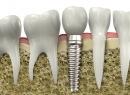 Имплантация зубов за один визит – это реально - протезы и импланты, общий наркоз, имплантация