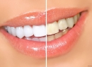 Как отбелить зубы в домашних условиях - гигиена и эстетика, отбеливание зубов, домашние условия, капа