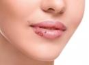 Хейлит (заеды на губах), лечение хейлита - лечение заеды, лечение, хейлит