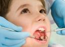детские зубы