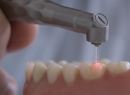 Лечение зубов лазером - лечение, лазерная стоматология, лечение