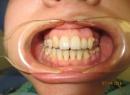 Макродентия - лечение, аномалия размера, аномалия формы зубной ряд, лечение, макродентия