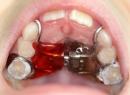 Методы ортодонтического лечения – брекет-система, съемные пластины - гигиена и эстетика, брекет-системы, брекеты, ортодонтическое лечение, пластины