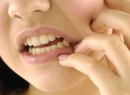 Неправильный прикус у ребенка: причины и методы коррекции - детская стоматология, выравнивание, дети, неправильный прикус, ортодонтия