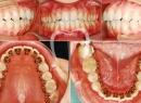 Нюансы ортодонтического лечения - протезы и импланты, брекеты, ортодонтическое лечение