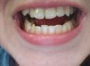 Оголяются зубы: почему это произошло со мной и как поступить? - лечение, лечение, обнажение зуба, причины