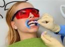 Отбеливание зубов методикой Zoom! - гигиена и эстетика, отбеливание зубов, технология zoom!