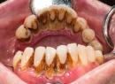 Пародонтит тяжелой степени - лечение, тяжелая степень тяжести, лечение, пародонтит, хирургическое вмешательство