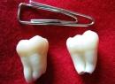 Перикоронарит: лечение и кариес зуба мудрости - лечение, зуб мудрости, кариес, перикоронарит, перикоронит