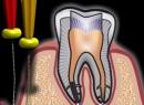 Периодонтит и его лечение - лечение, лечение, периодонтит, причины