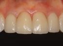 Протезирование зубов керамическими винирами - протезы и импланты, керамические виниры, протезирование зубов