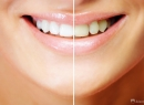Процедура отбеливания зубов. Надо ли отбеливать зубы? - гигиена и эстетика, отбеливание зубов, отбеливание лазером, домашнее отбеливание, смешанное отбеливание, механическое отбеливание, способы отбеливание, химическое отбеливание