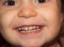 Серебрение молочных зубов: польза, вред, альтернативы - интересное, дети, недостатки, преимущества, серебрение зубов, фторирование