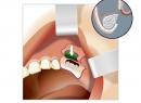 Синусліфтинг - протезы и импланты, протезирование, синусліфтинг