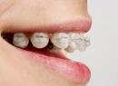 Соска-пустышка и зубы ребенка - детская стоматология, ребенок, последствия, прикус, пустышка, соска