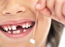 Удаление молочных зубов. А нужно? - детская стоматология, удаление молочных зубов
