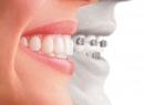 Украшения зубов – уникальная улыбка - гигиена и эстетика, зубы, драгоценности, украшения, скайсы