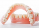 Виды протезирования зубов - протезы и импланты, виды, съемные протезы