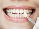 Виниры – это эстетическая облицовка зубов - гигиена и эстетика, виниры, эстетическая стоматология, противопоказания