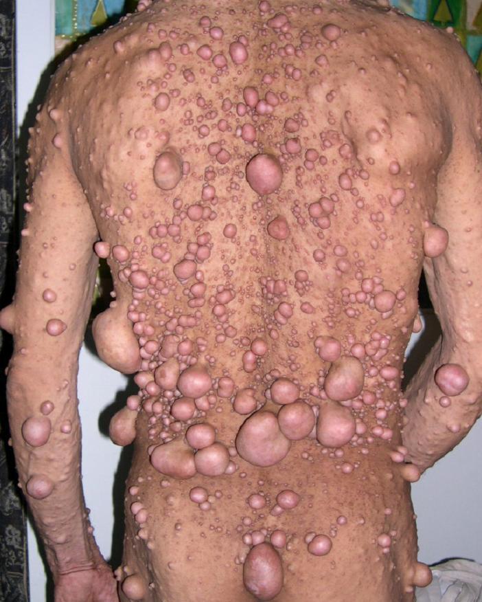 Картинки по запросу Нейрофиброматоз
