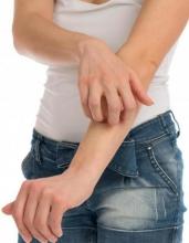 Аллергия на ногах и руках: причины, симптомы и особенности лечения
