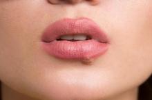 На лице простуда: особенности, возможные причины и особенности лечения