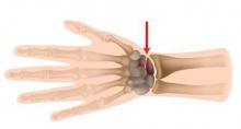 Перелом ладьевидной кости: симптомы и лечение