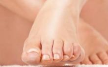 Микоз ногтей на ногах: лечение лекарственными препаратами и народными средствами