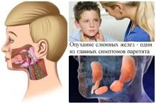 Народные методы лечения свинки (паротита)