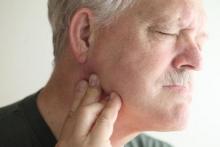 Рак челюсти: симптомы, фото, лечение, прогноз