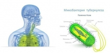 Лекарства от туберкулеза. Новые противотуберкулезные препараты: названия, инструкции