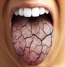 Основные причины сухости во рту по ночам