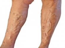 Ілеофеморальний тромбоз: причины, симптомы, лечение