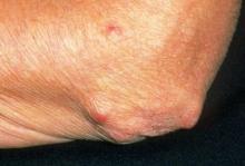Ревматоидные узелки (фото)