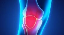 Самые распространенные болезни коленей