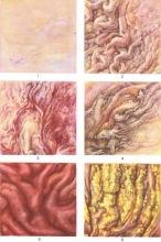 Гастрит - симптомы гастрита, гастрит острый и хронический, формы гастрита и форм симптомы, диагностика и ле