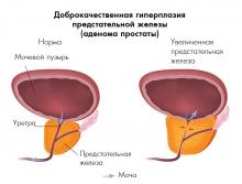 Народные методы лечения аденомы простаты