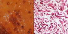 Кандидоз желудка: причины, симптомы, лечение