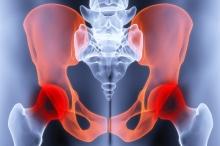 Коксартроз - симптомы, причины, последствия и лечение коксартроза