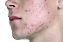 Демодекоз на лице: причины, симптомы и лечение заболевания (Прыщи на лице)