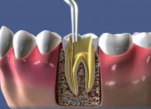 Для чего проводят пломбирование каналов зуба - лечения, пломбировочные материалы, пломбирования каналов