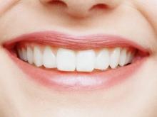 Минерализация в зубах