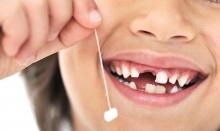 нужно Ли лечить молочные зубы? Важные рекомендации относительно «детского кариеса» - детская стоматология, лечение, молочные зубы